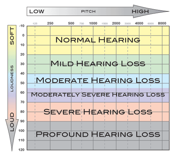 Normal adult low frequency hearing threshold