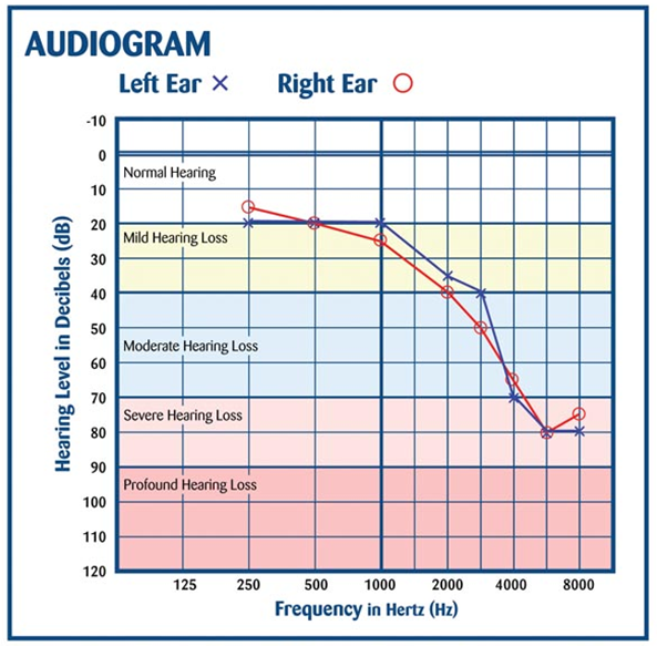 Image from http://baasnotes.com/blog/wp-content/uploads/2008/10/audiogram-presbyacusis-rgb.jpg