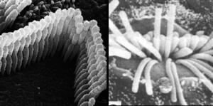 Healthy hair cells vs. damaged hair cells